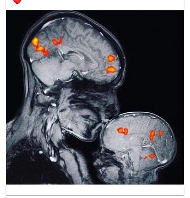 MRI of love 😍