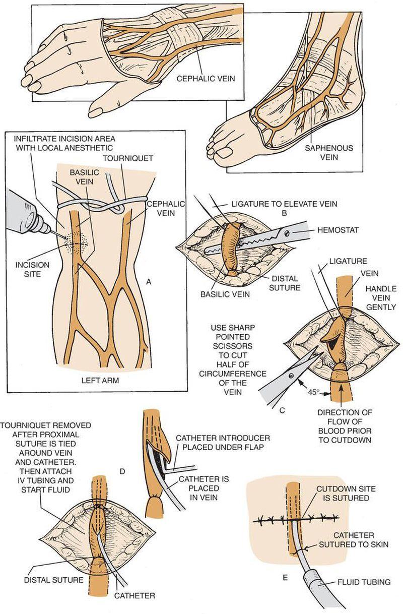 Steps of Venous Cutdown