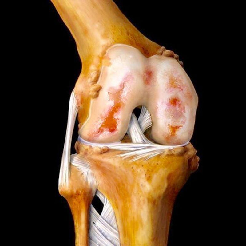 Beautiful artwork of the knee joint! :)