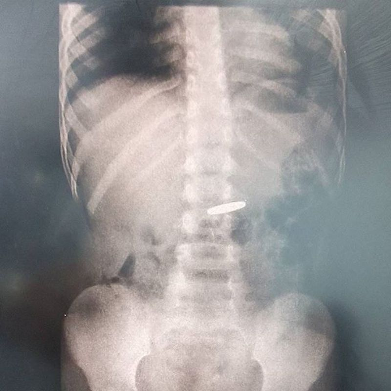 Foreign Body X-Ray