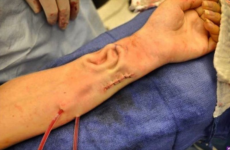 Doctors at Johns Hopkins have attached a new ear to a patient that was grown on her own forearm.