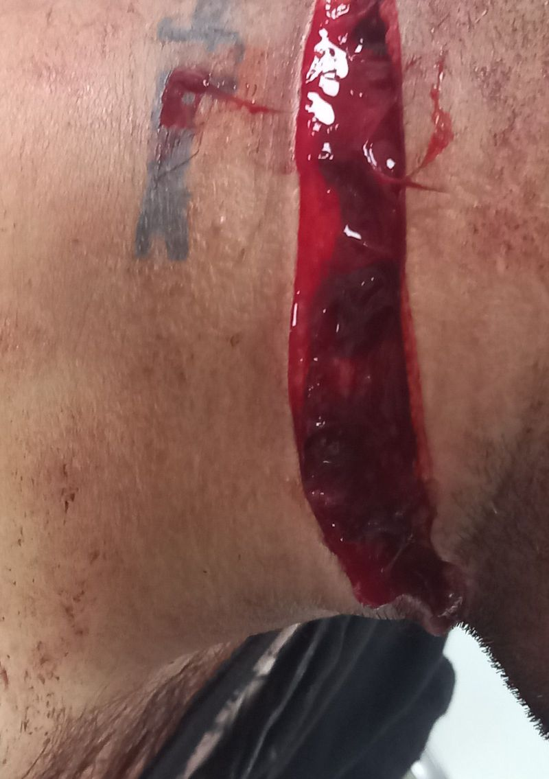Cut wound at neck