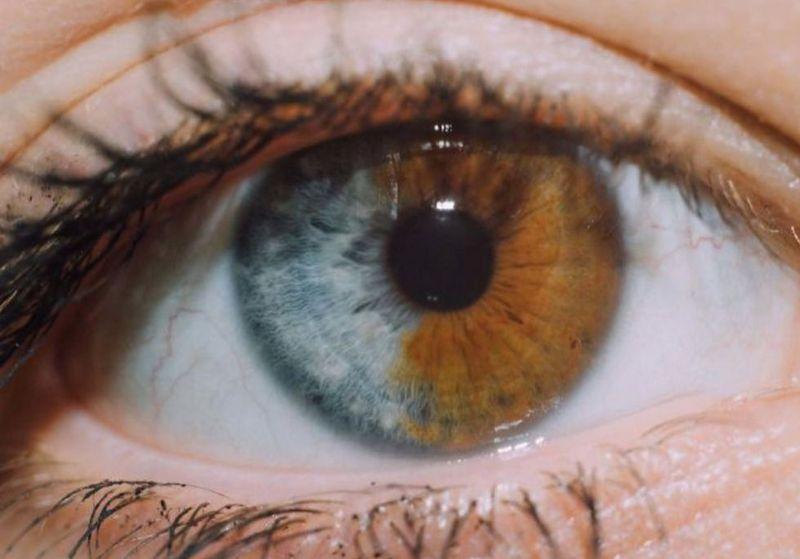 Iris Split in Half