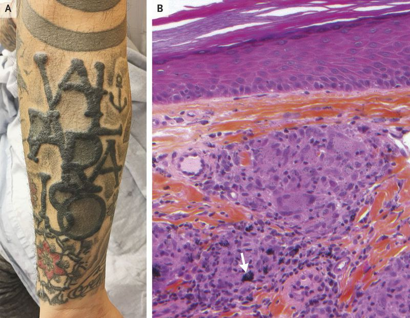 Sarcoidal Reaction in a Tattoo
