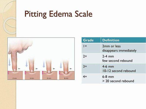 Edema scale