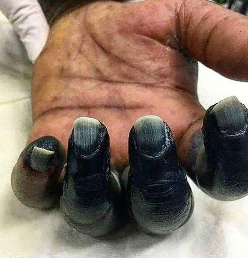 Ischemic necrosis and gangrene of fingers