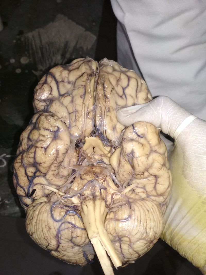 What you see in this pic about #brain