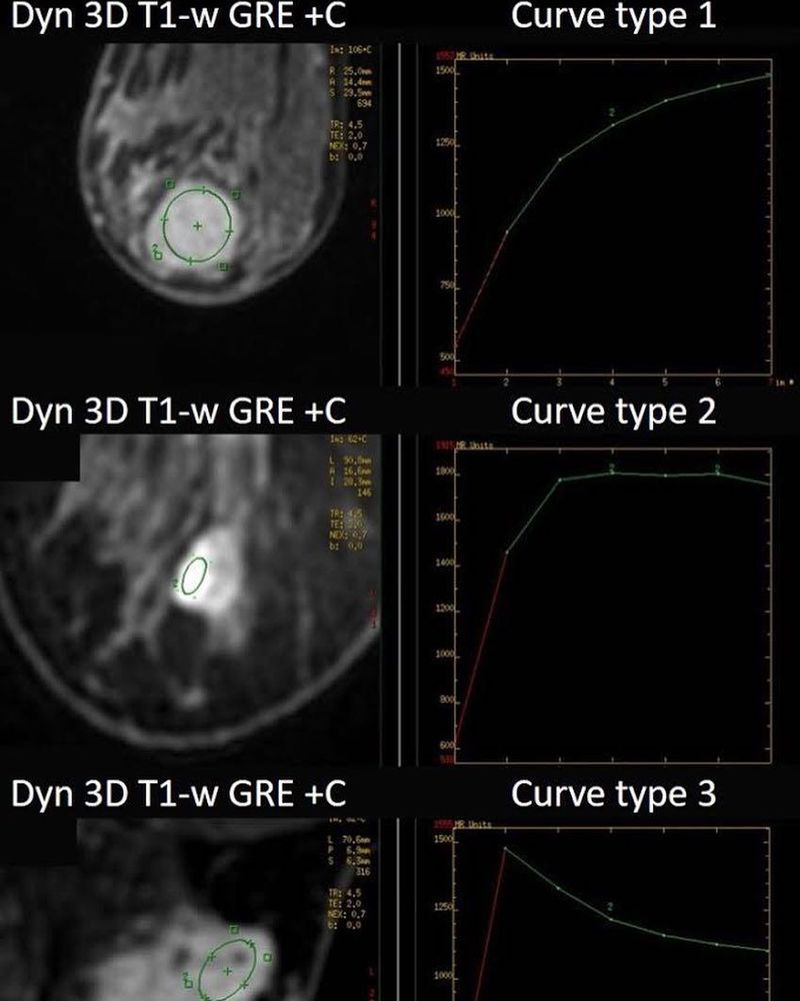 Three possible enhancement kinetic curves in breast MR Imaging