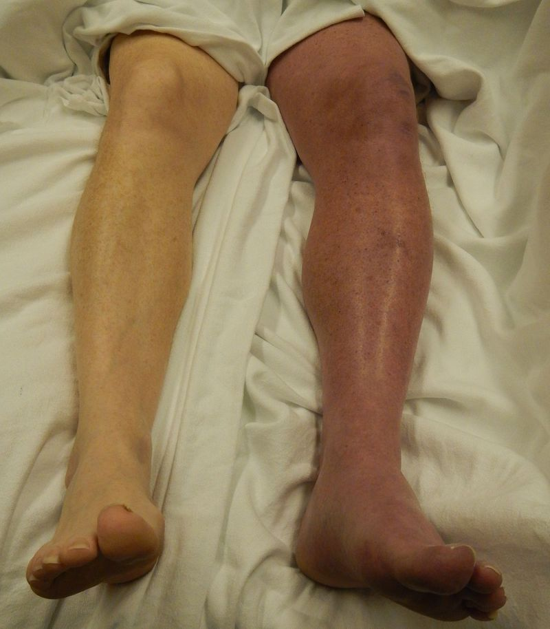 What is the diagnosis and complications?