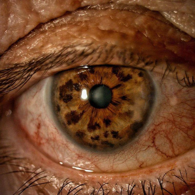 Iris freckles