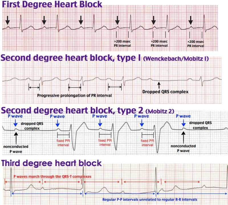 (To Aishah 🌸)(Part 1)🤓Atrioventricular (AV) block Aka heart block.  Causes Idiopathic RCA infarct (inferior MI), as this supplies the AV node. Myocarditis Drugs: β-blockers, calcium channel blockers, adenosine, digoxin, cholinesterase inhibitors. 1st degree AV block Prolonged PR interval (>0.2 seconds, 5 small squares). No treatment required. 2nd degree AV block Intermittent conduction of the P wave to the ventricles. The conduction ratio is the number of P waves to QRS complexes e.g. 4:3. A conduction ratio of 2:1 is untypable as it is hard to determine if there is progressive PR prolongation. High grade 2nd degree block is when 2 consecutive P waves fail to conduct to the ventricles. The P waves are regular, distinguishing it from ectopic atrial contractions. 2nd degree AV block type 1 Aka Mobitz type 1, or Wenckebach. Progressively prolonged PR interval until a P wave fails to transmit to the ventricles. No treatment required. Can sometimes be hard to distinguish from Mobitz type 2 when increases in PR are small. Look for the biggest increase, which is between the 1st and 2nd PR after the missed QRS. 2nd degree AV block type 2 Aka Mobitz type 2. Constant PR interval but intermittent failure to transmit to the ventricles. High risk of progression to 3rd degree block so often requires pacemaker treatment. 3rd degree AV block Aka complete heart block. No transmission of P waves into ventricles, with a ventricular escape rhythm taking over. QRS is usually wide, but occasionally the bundle of His provides the pacemaker and thus the QRS is narrow. HR 20-40. This is one cause of AV dissociation. Others include accelerated idioventricular rhythm (ectopic focus in ventricles with HR 50-110) and VT. Requires pacemaker.........................................Bundle branch blocks General features Blockage in the bundle branches, which lie between the bundle of His and the Purkinje fibres. Depolarisation instead spreads via the (slower) myocardium, causing broad QRS complexes